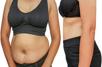 Устранение лишнего жира навсегда всего за 1 процедуру!